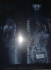 Radiografía de la columna de Maite.